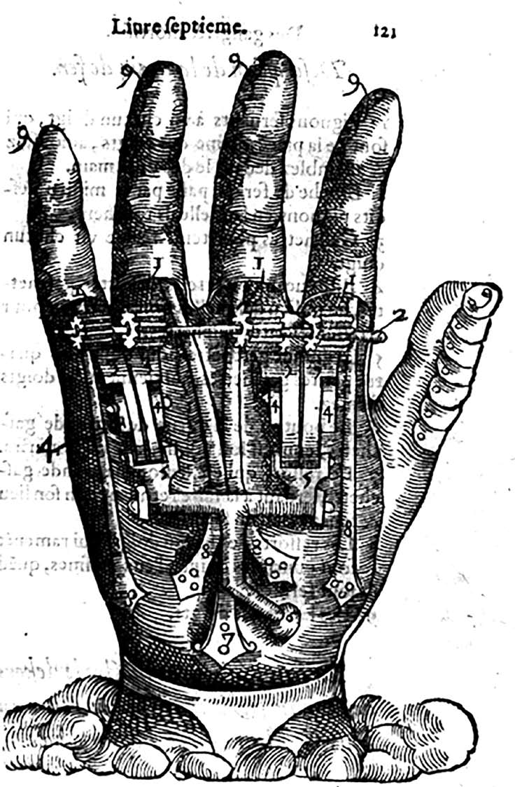 From Ambroise Paré's designs for mechanical prosthetics in Dix livres de la chirurgie (1564)